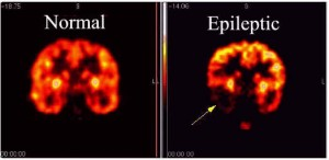 a epilepsy brain